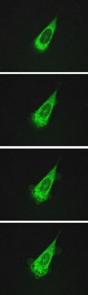 A sequence of images taken over 10 minutes shows a human prostate cell under attack by motorized molecules – the cellis made permeable by the nanomachines, which drill through its lipid bilayer membranes – the bottom images clearly show bubblingof the membrane as cytoplasm leaks out of the cell