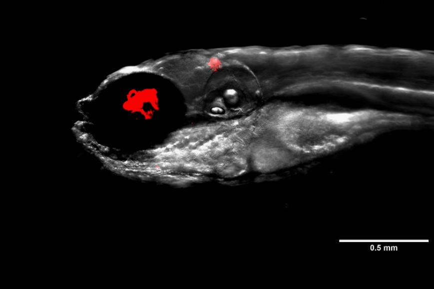 A zebrafish infected with Mycobacterium abscessus bacteria, shown here fluorescing in red