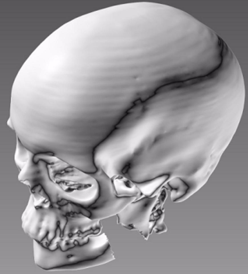 Further adding to ITOP's potential is its ability to take data from the CT or MRI scans and make bespoke tissue for patients