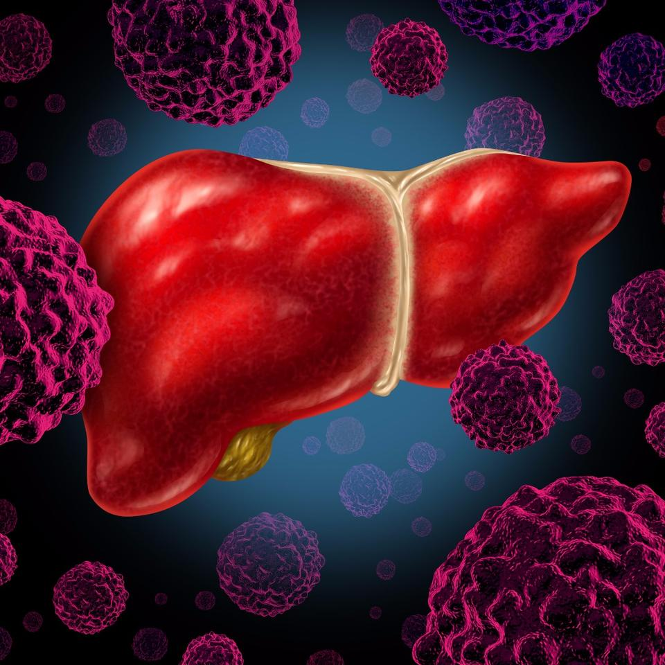 """Aset of proteins """"were significantly more common"""" in samples taken from patients with NASH, than those without the liver disease"""