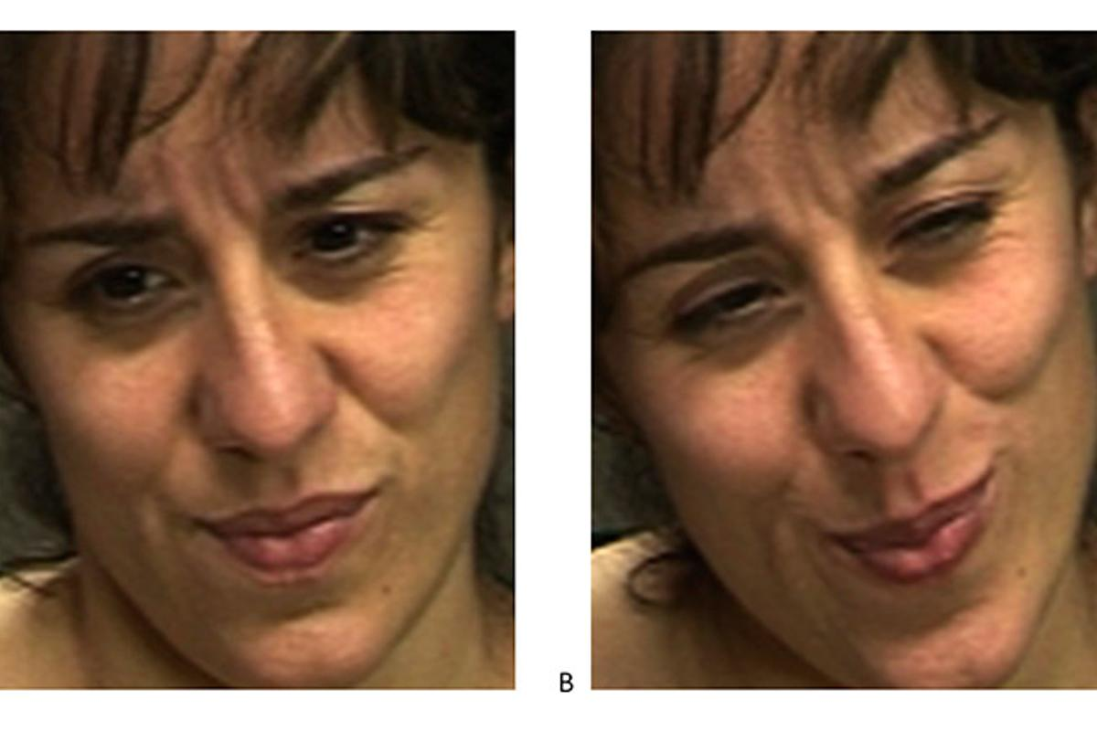 Which expression do you think shows real pain? (Photo: UC San Diego)