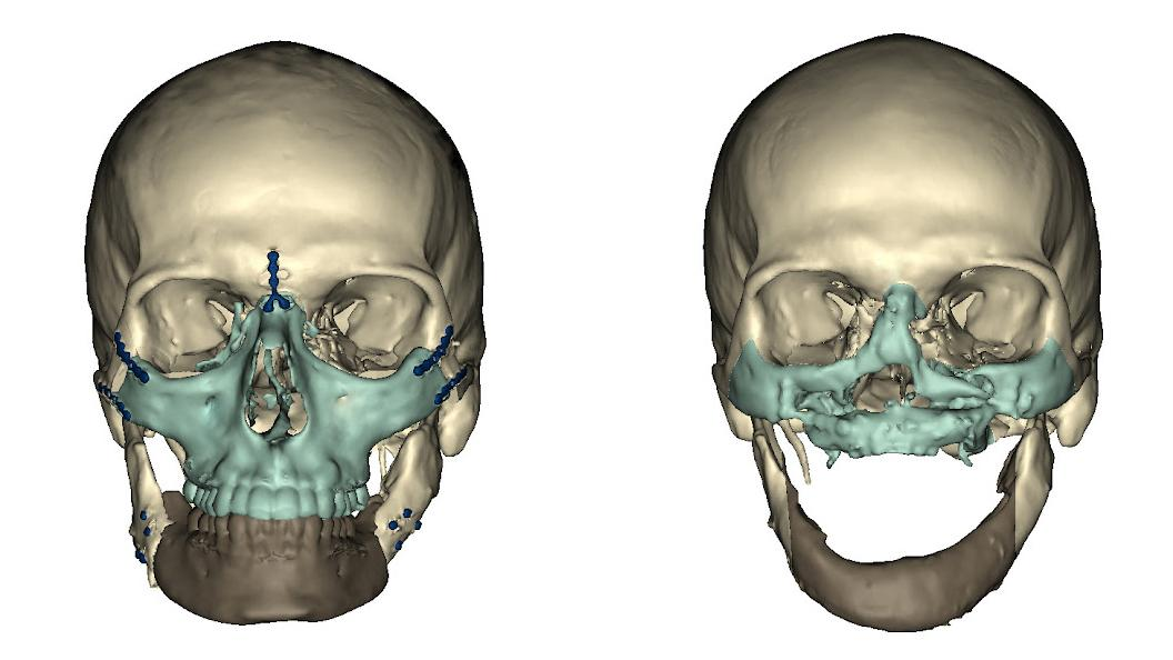 CT scan before and after surgery (Image: University of Maryland Medical Center)