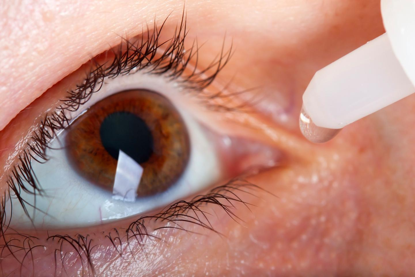 A new treatment for age-related macular degeneration hopes to replace an injection into the eye with simple eye drops