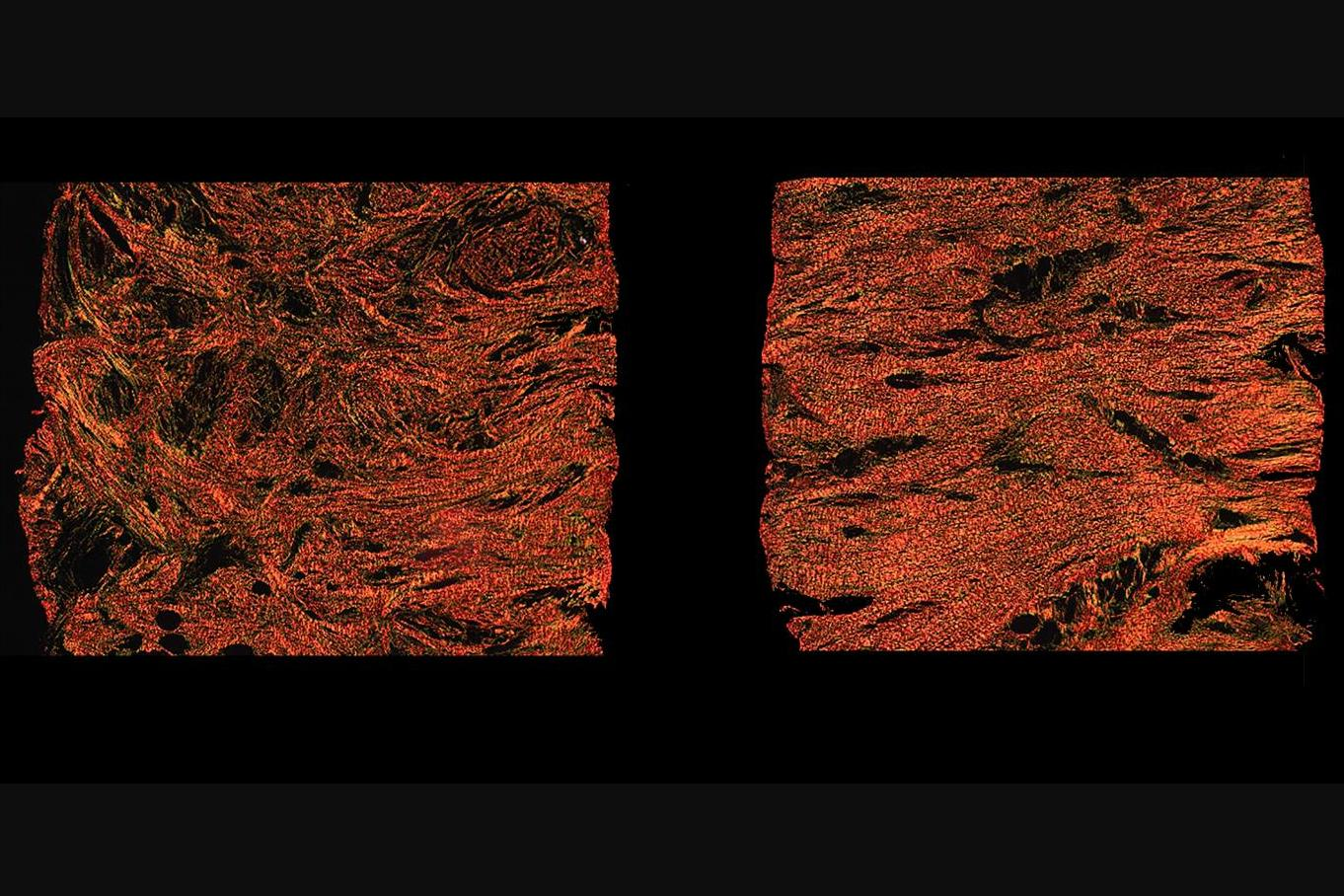 Microscope images of the enmeshed collagen fibers in a scar treated with alphaCT1 (left) and the less flexible aligned fibers in a scar treated with a non-medicated gel (right)