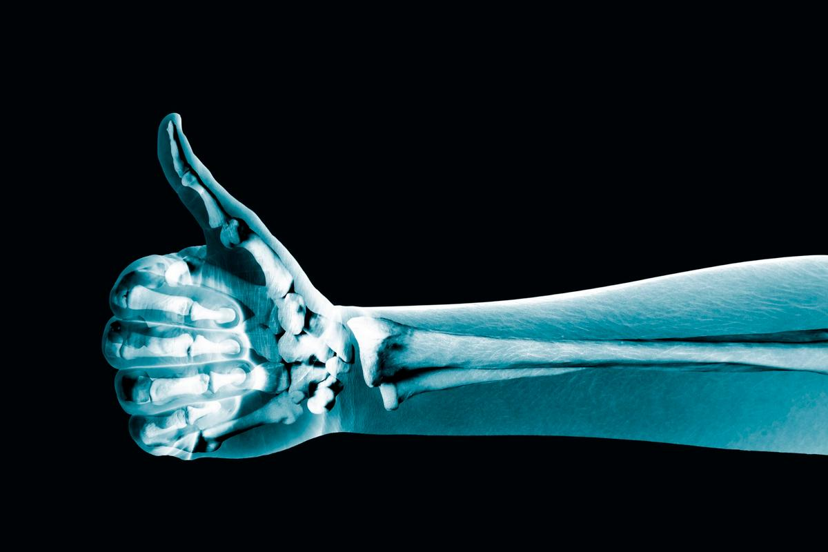 A new injectable drug is claimed to significantly speed up the healing of fractured bones