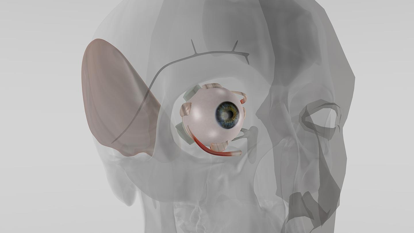 Fraunhofer researchers are developing an implant that once inserted into the eye could regulate fluids to preserve vision