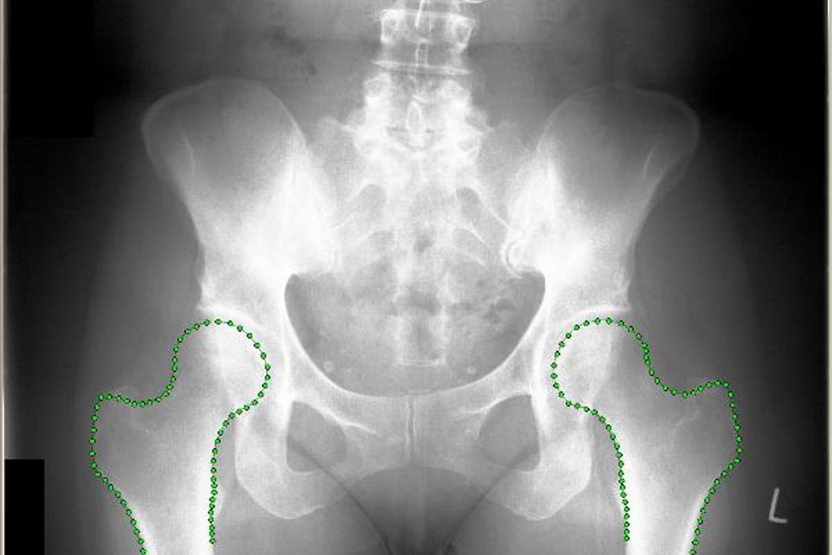 An x-ray displaying BoneFinder-enhanced hip bones