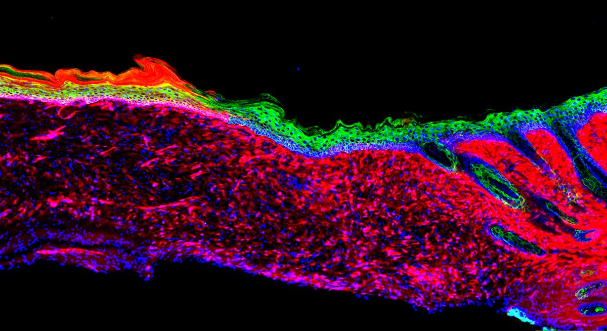 Salk Institute scientists converted one type of cell (seen in red) intobasal keratinocytes (green), a precursor to healthy skin cells