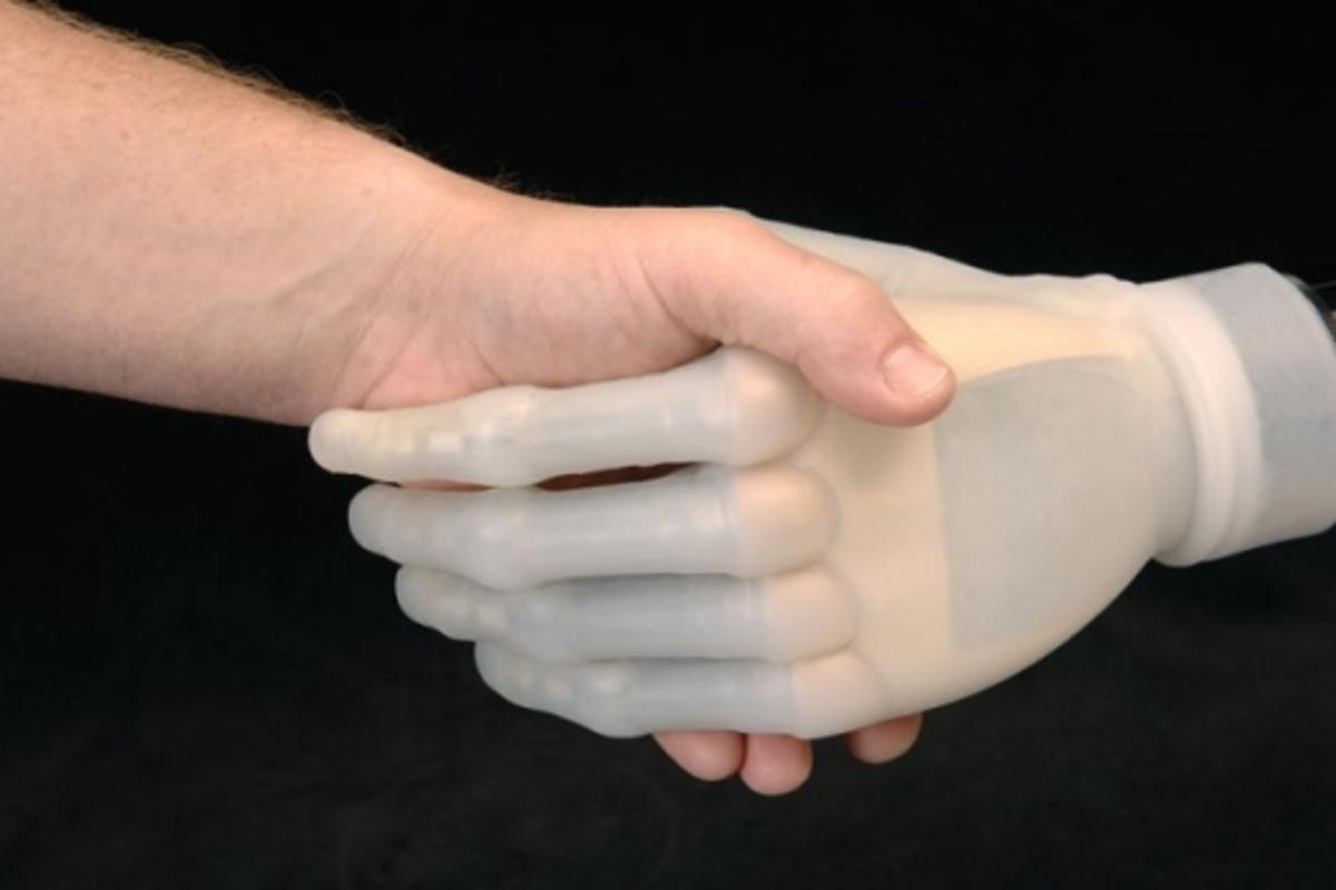 iLimb: fully articulating bionic hand