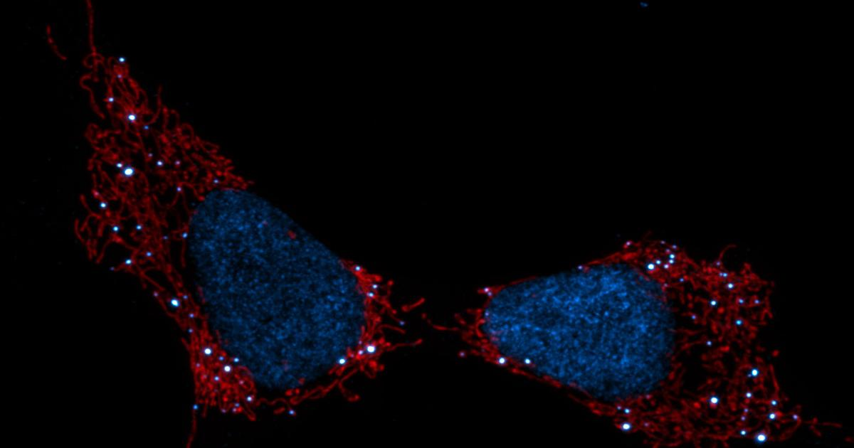 How mitochondria can shield cancer cells from chemotherapy