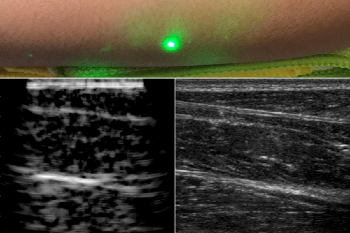 The first image of human tissue using the new laser ultrasound technique (left) compared to the current traditional ultrasound method (right)