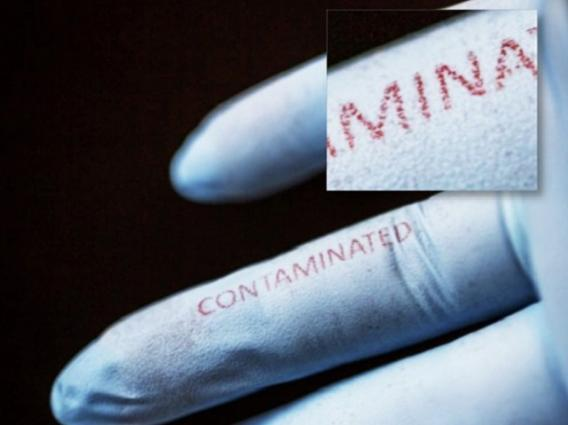 "The word ""contaminated"" printed on surgical gloves with a bacteria-sensing silk-ink that reacts to the presence of bacteria, changing color from blue to red"