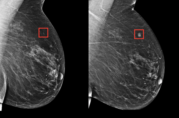 On the left is an example of an early mammogram pattern that the AI system could predict becoming cancerous in the future