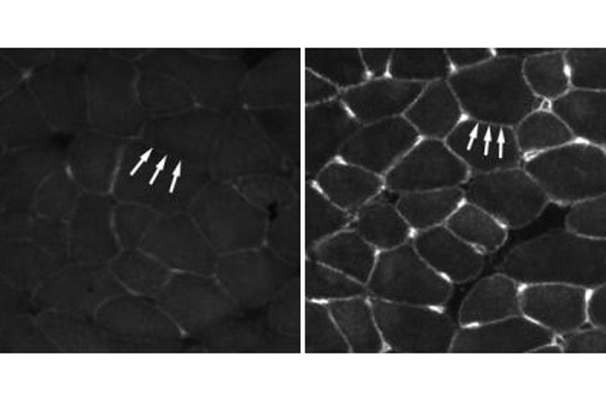 Muscle cells of untreated mice with muscular dystrophy (left) show little utrophin in cell walls while those of mice treated with biglycan (right) have accumulated the protein (Credit: Fallon Lab/Brown University)
