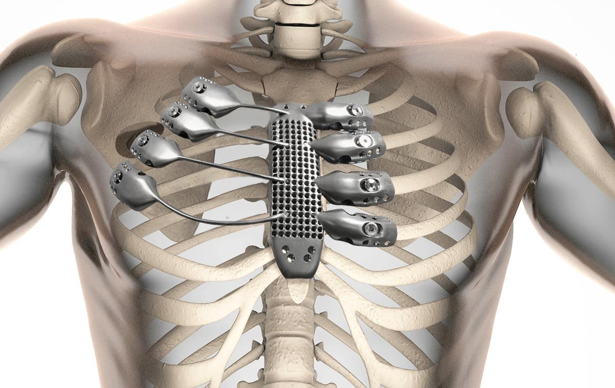 3D printing technology has enabled a replacement sternum and rib cage customized for a specific patient