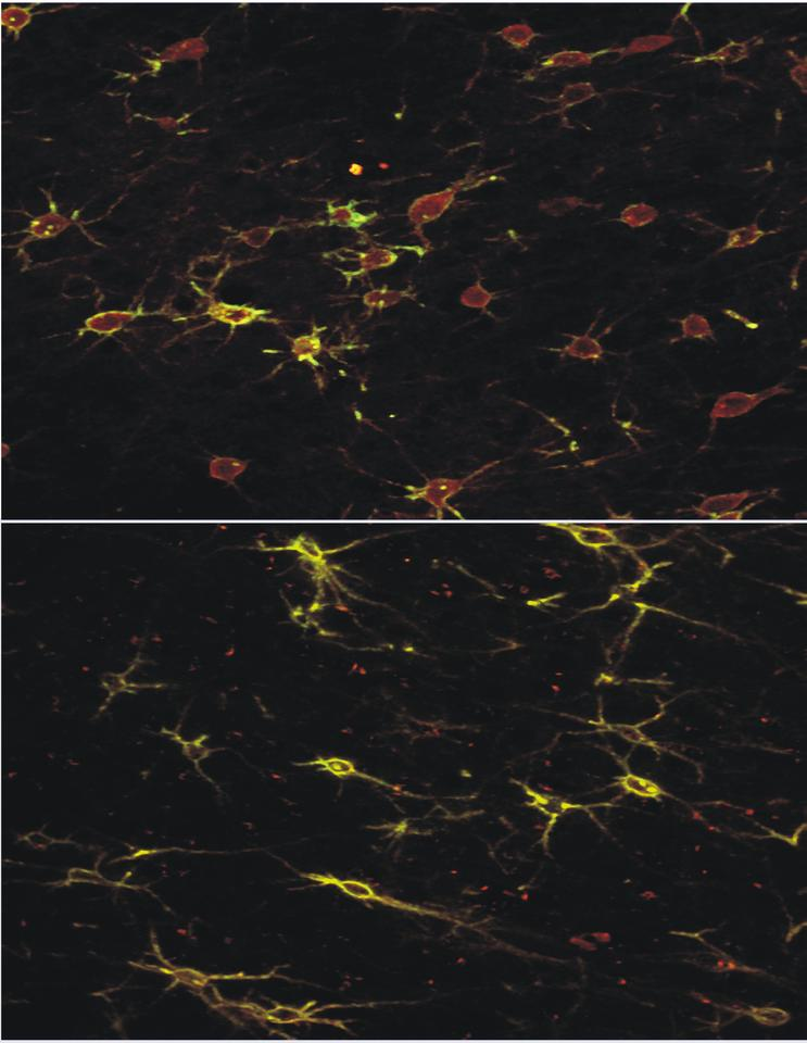 Brain slice of the frontal cortex of a rat showing nerve cells before and after treatment with the iTBS protocol showing a reduction in a protein called Paravelbium (red) but retention of perineural network (green)