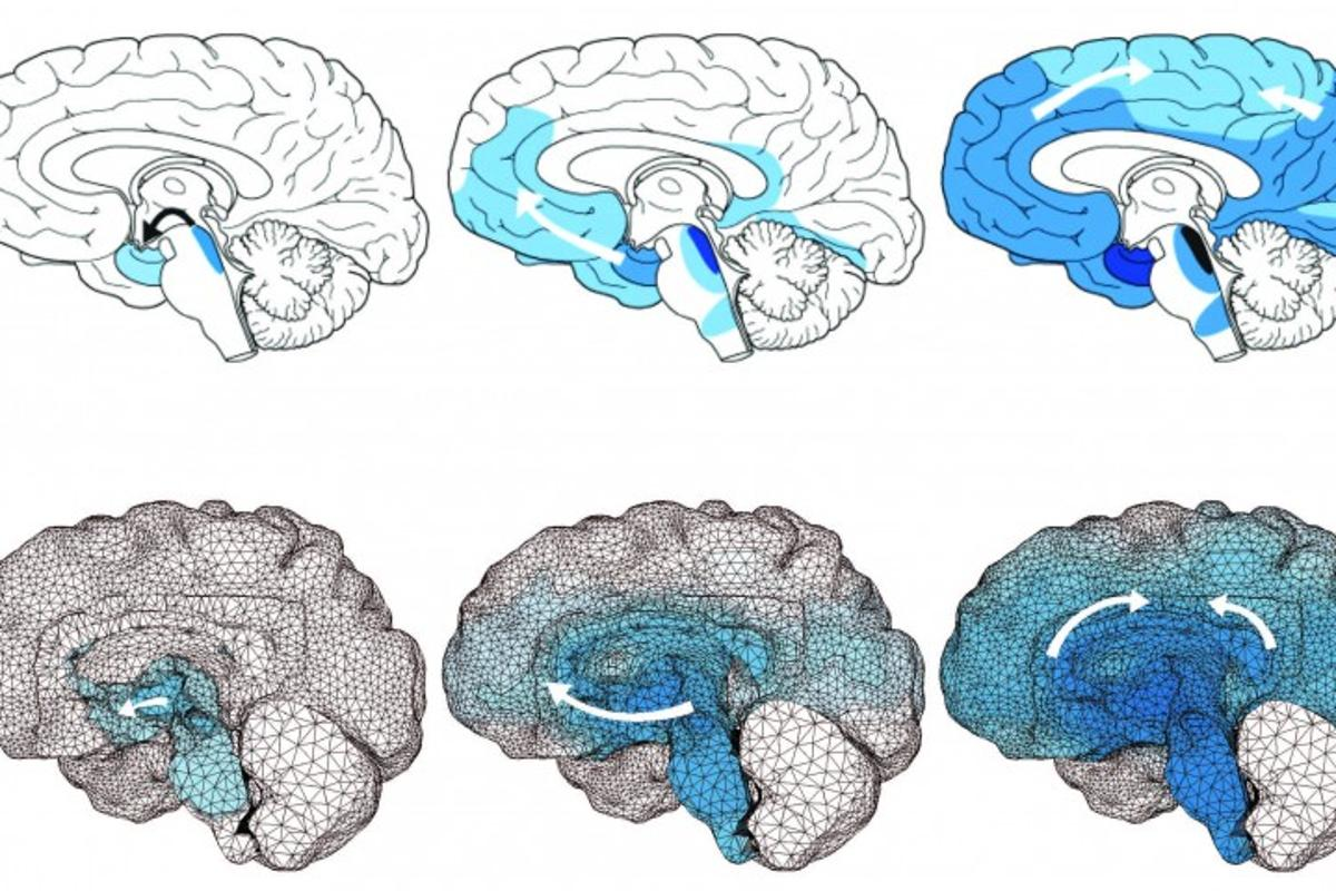 The above model shows how toxic tau proteins spread throughout the brains of patients with Alzheimer's disease