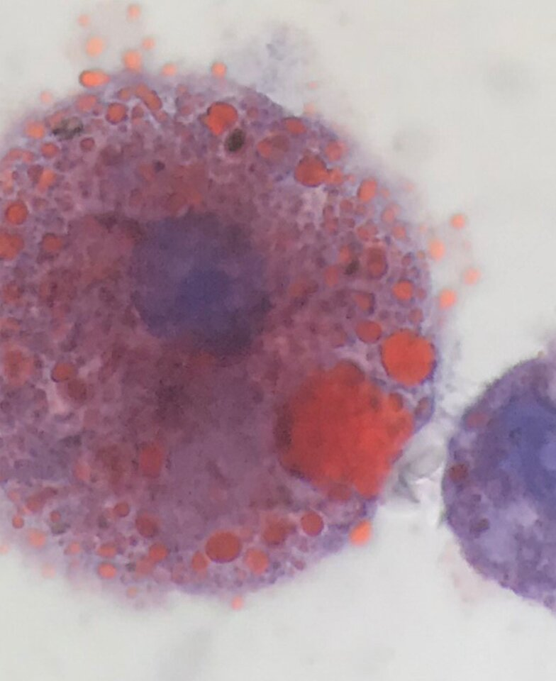 Lipid-laden macrophages found in lungs of vaping patients