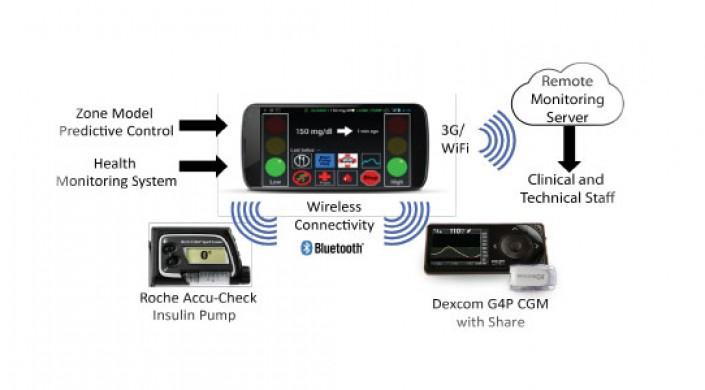 Schematic showing components of the closed-loop system. The insulin pump and Dexcom G4 Share AP CGM receiver with 505 algorithm were connected wirelessly via bluetooth to the Diabetes Assistant (DiAs) smartphone device.