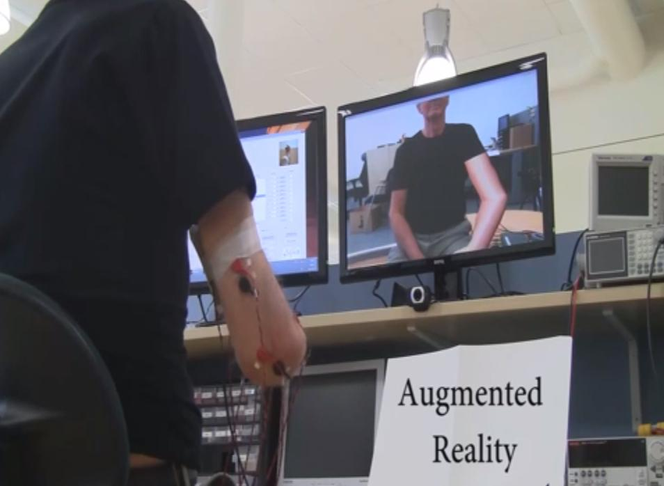Researchers from Sweden's Chalmers University of Technology have deleoped an augmented reality treatment for phantom limb pain