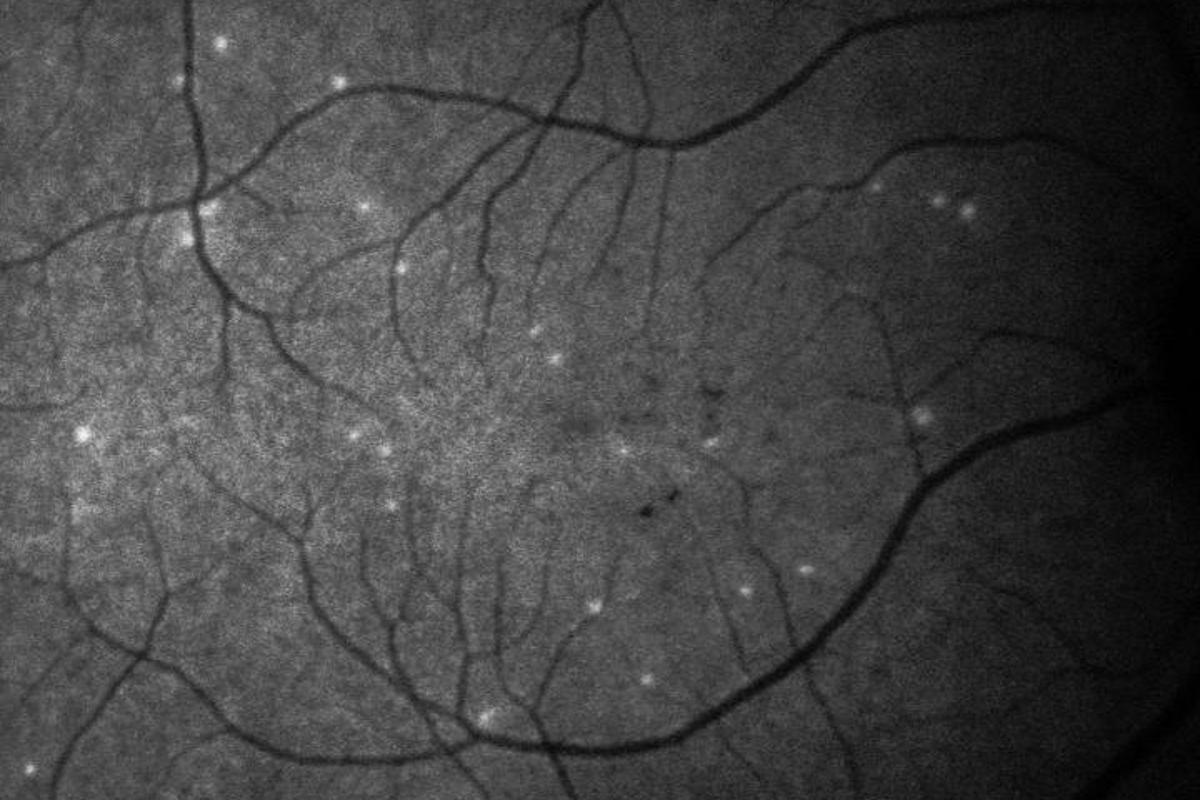 A newly developed AI tool detects signs of glaucoma by tallying up dying cells, shown here in white