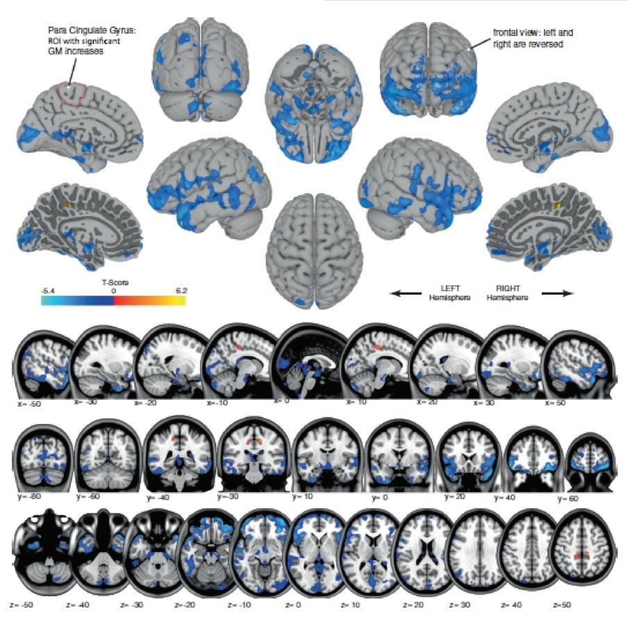 The blue sections highlight where gray matter decreased, while the orange areas show where its volume increased