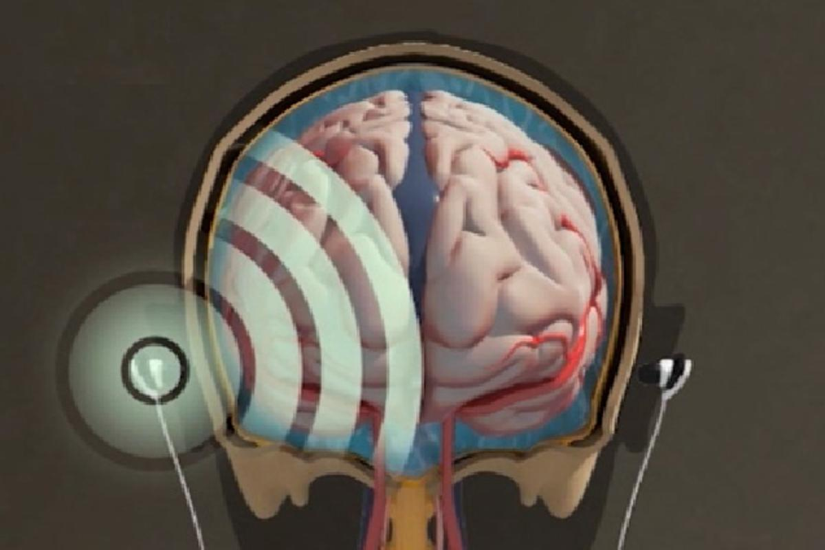 HeadSense says it has an alternative to invasive procedures to monitor pressure in the skull