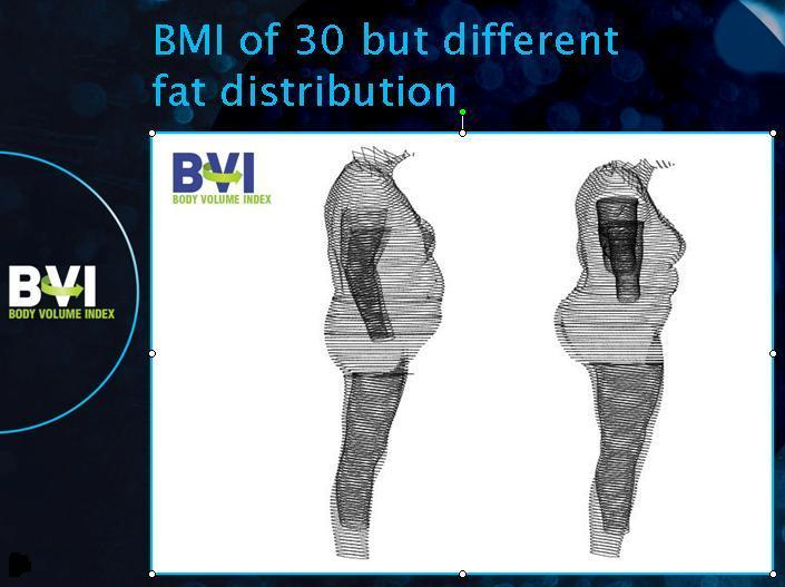 The Body Volume Index uses a 3D scanning process to analyze fat distribution