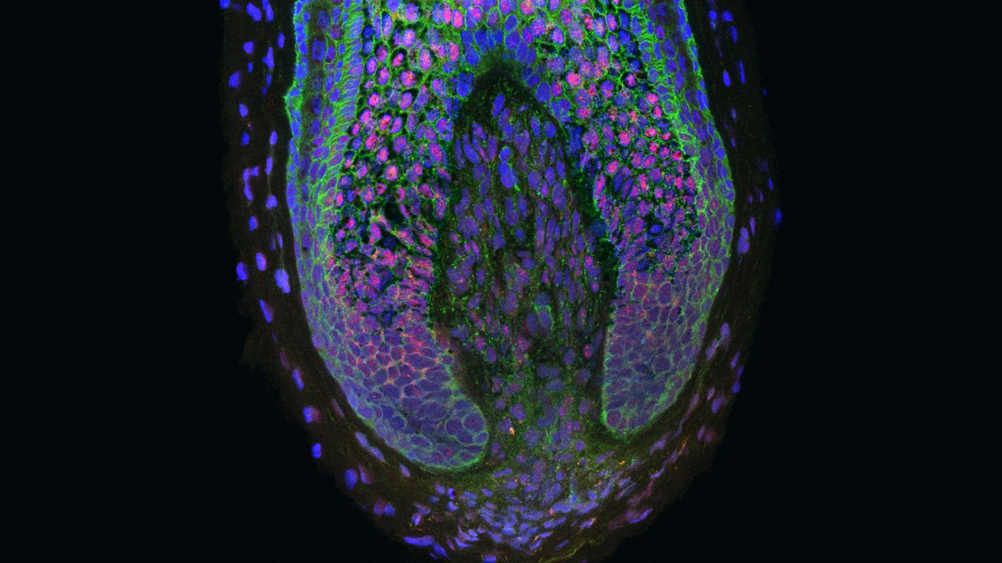 Researchers have created new human hairs using dermal papilla cells found inside the base of human hair follicles (Photo: Claire Higgins/Christiano Lab at Columbia University Medical Center)