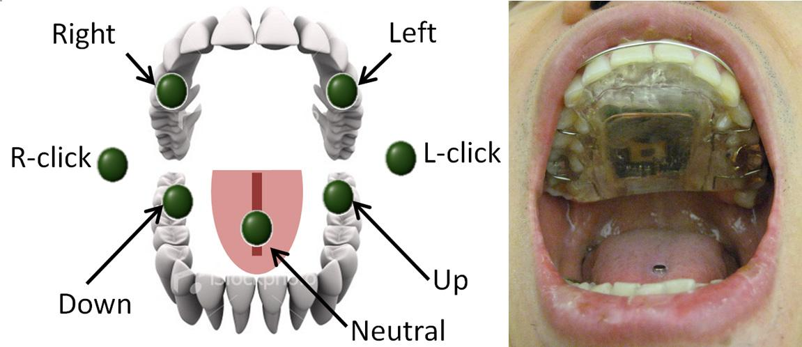 Georgia Institute of Technology's new intraoral Tongue Drive system