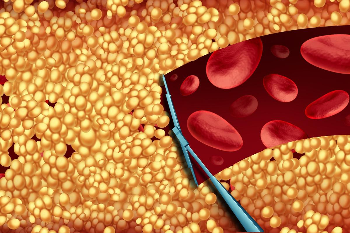A new drug for lowering cholesterol is hoped to be available within the next one to two years