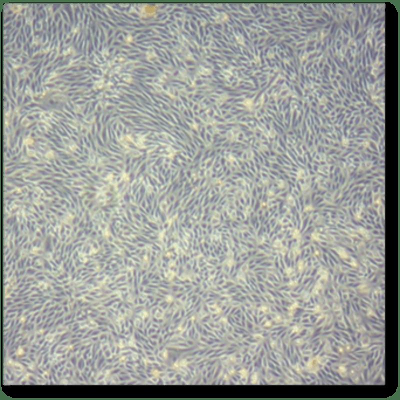 Kidney stem cells, specifically urine-derived renal progenitor cells (UdRPCs)