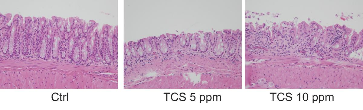 Exposure to triclosan in mice demonstrating increased inflammation