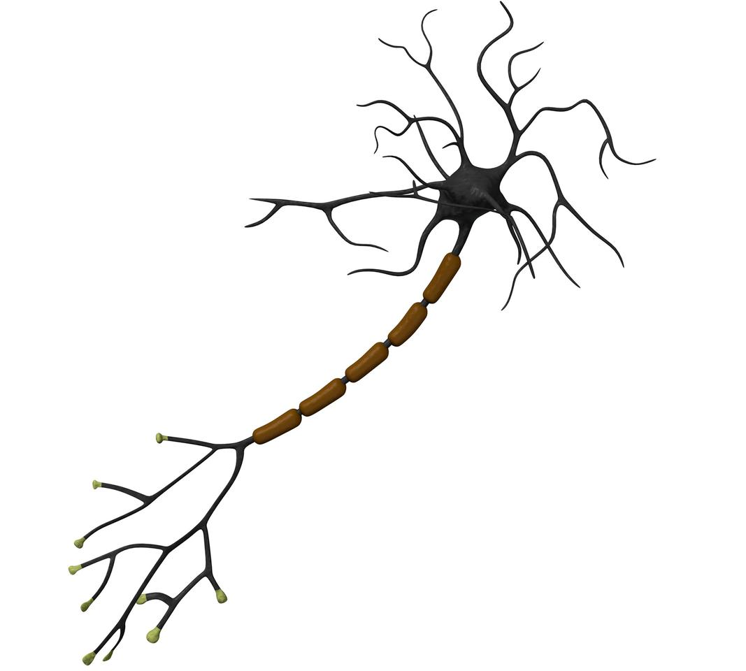 A normal nerve cell, with the myelin (brown) intact (Image: Shutterstock)