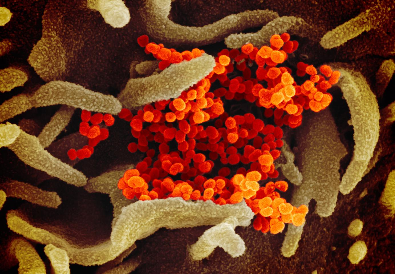 This scanning electron microscope image shows the novel coronavirus, SARS-CoV-2 (colored in orange), isolated from a patient in the U.S., emerging from the surface of cells (green) cultured in the lab