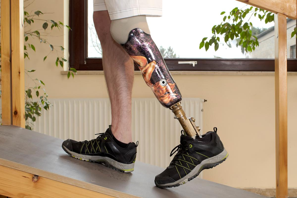 A new micro-printing process that allows the production of biocompatible and energy-efficient MEMS could help improve prosthetic limbs and medical implants (Photo: Shutterstock)