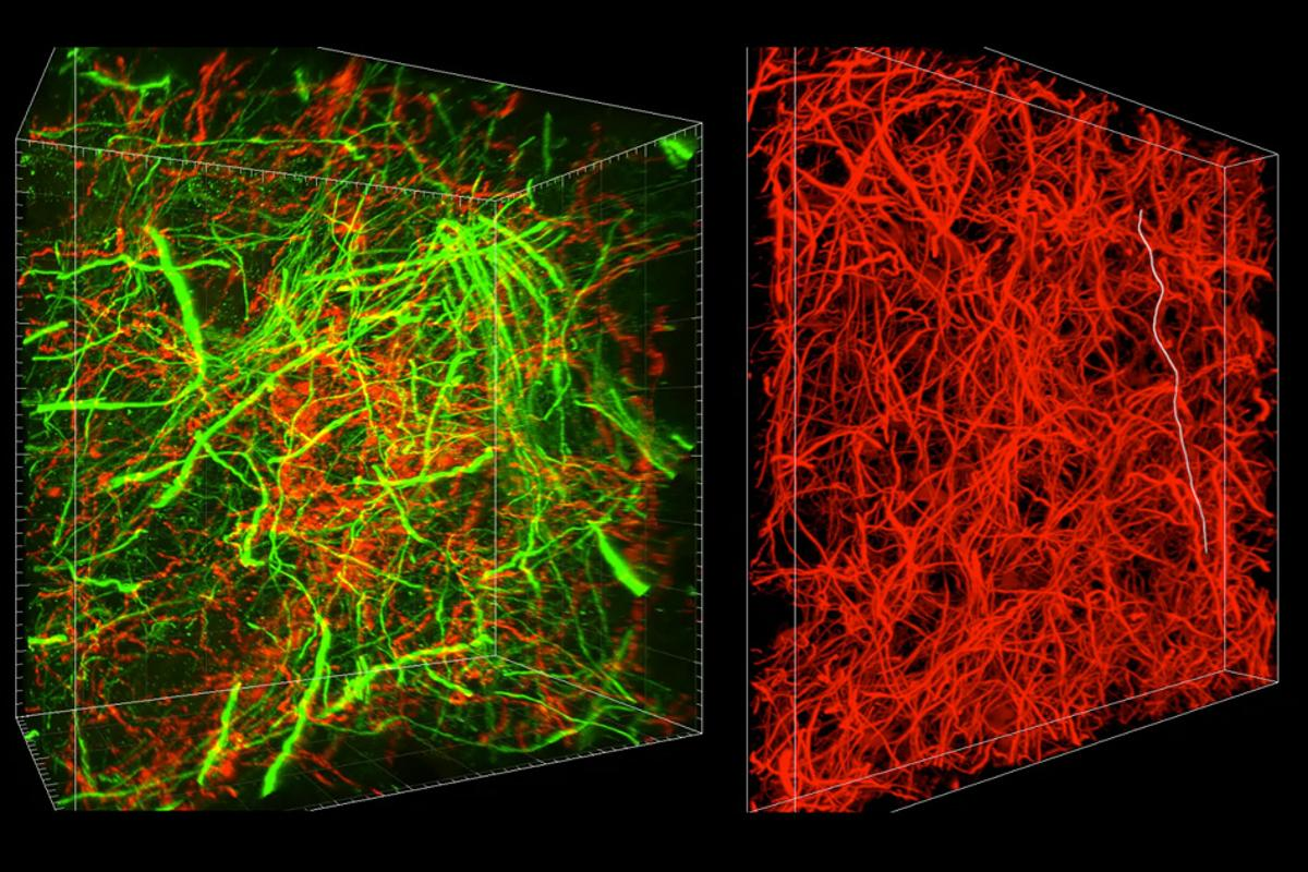 A new brain imaging technique calledmagnified analysis of proteome (MAP) allows scientists to examine the same sample of brain tissue at multiple scales – from high-level connectivity all the way down to subcellular resolutions