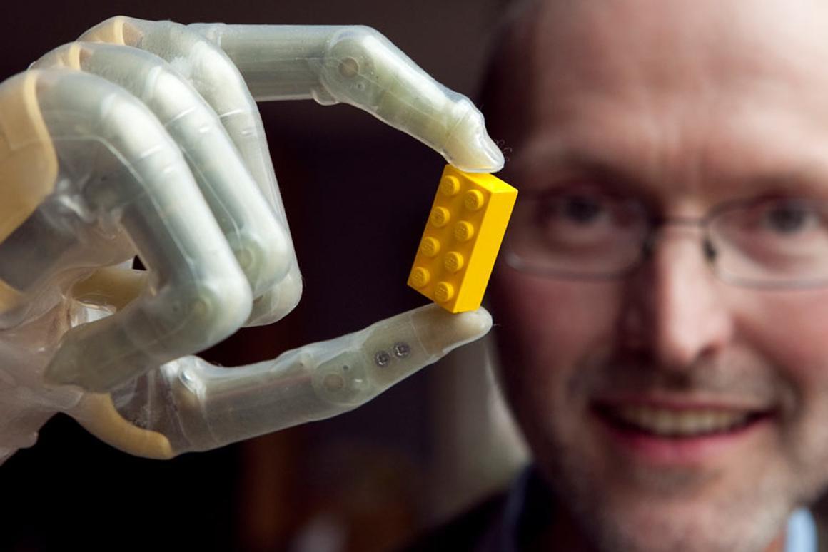 Eric Jones shows off his ProDigits bionic fingers