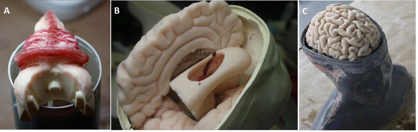 "Inside the 3D printed head developed for ""Nintendo Neurosurgery"" training"