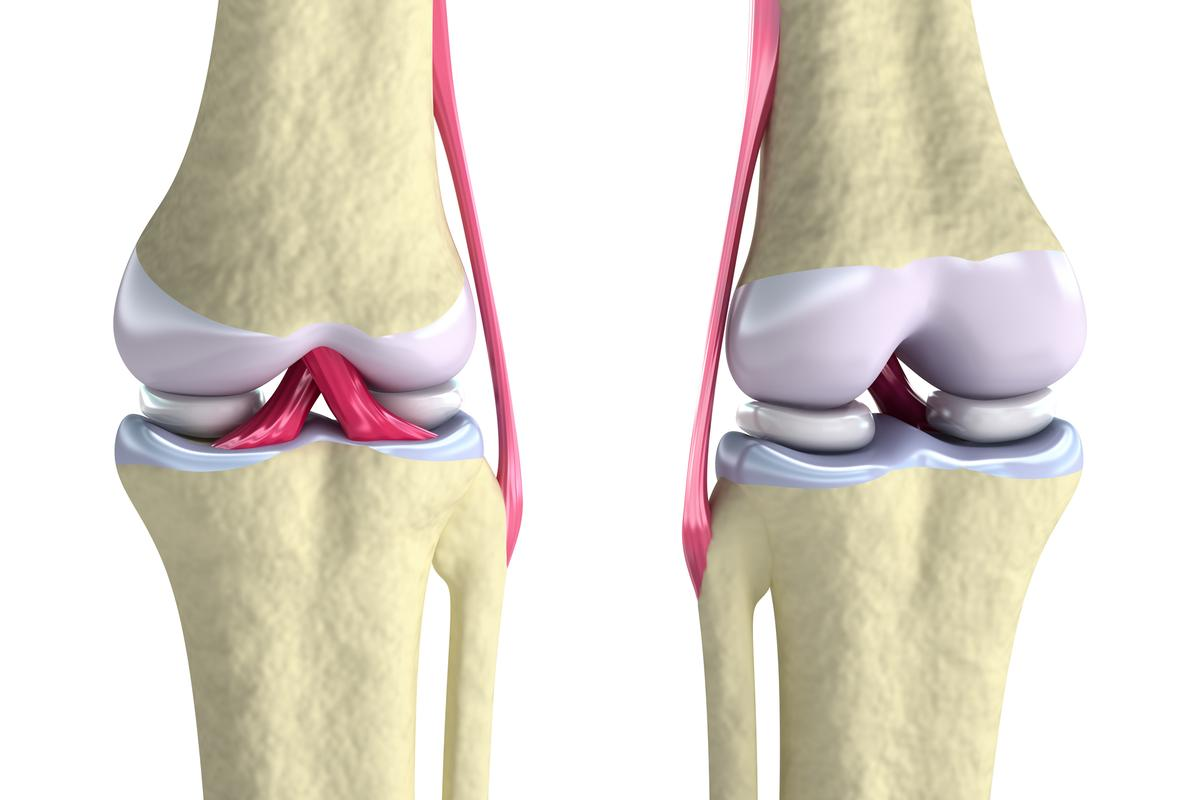 New hybrid bioinks could be used to 3D print replacement cartilage in the knee
