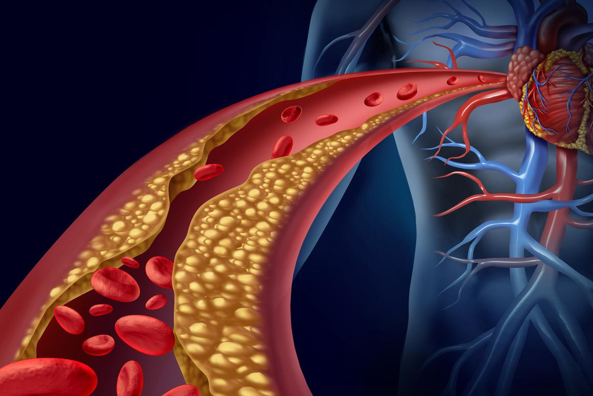 "Nanometer-sized ""drones"" that deliver drugs to heal and stabilize fat deposits in arteries could become a new way to prevent heart attacks caused by atherosclerosis (Photo: Shutterstock)"