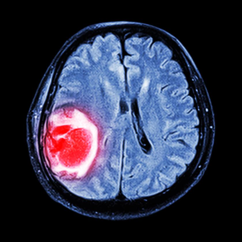 MRI of a brain scan revealing a tumor growth. In future, an adaptation of this imaging technology could also reveal the stiffness of these growths