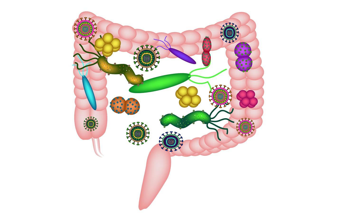A new study suggests greater levels of a specific type of gut bacteria can increase a person's bowel cancer risk by up to 15 percent