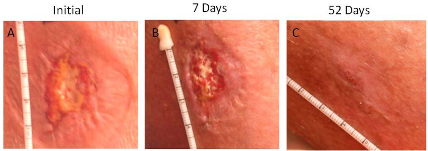 The progress of a wound treated with DermaFuse