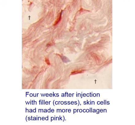 Skin cells four weeks after injection with filler