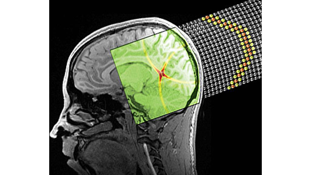 A stylized image depicting a sound bullet superposed onto a brain MRI (Image: Spadoni & Daraio/Caltech)