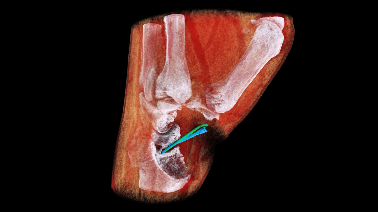 MBI's 3D scanner assigns colors based on different densities of tissue – so bones appear white, muscle appears red and implants appear blue and green