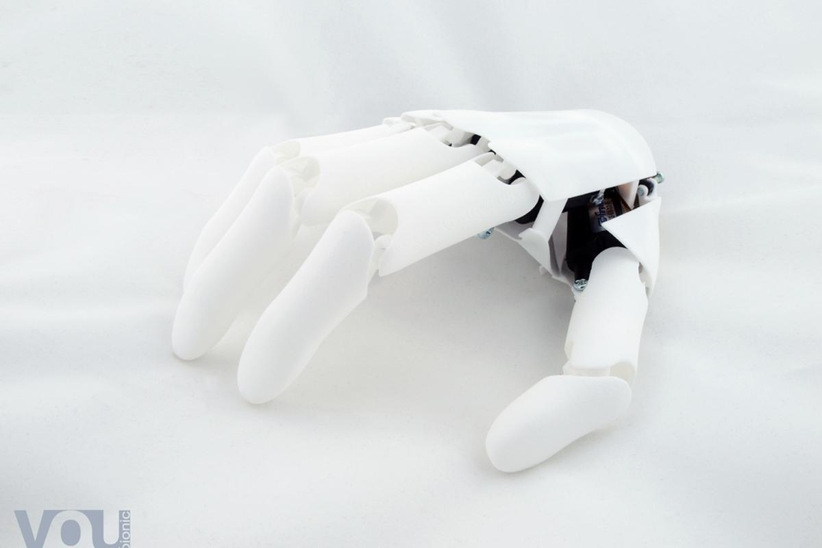 Youbionic says its hands will cost around €1,000, a fraction of the price of current commercial products