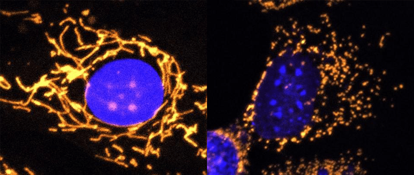 In cells mitochondria, highlighted in gold, should form healthy networks (left), but in DOA patients they can become fragmented (right)