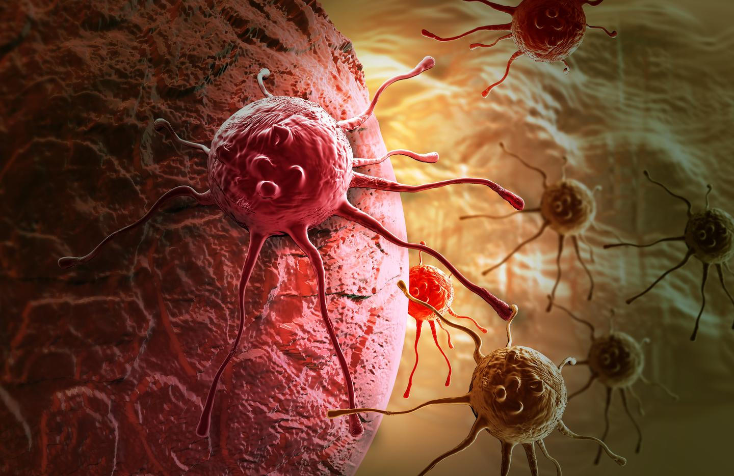 A vaccine induces the body into producing antibodies that help immune cells detect and kill cancer cells